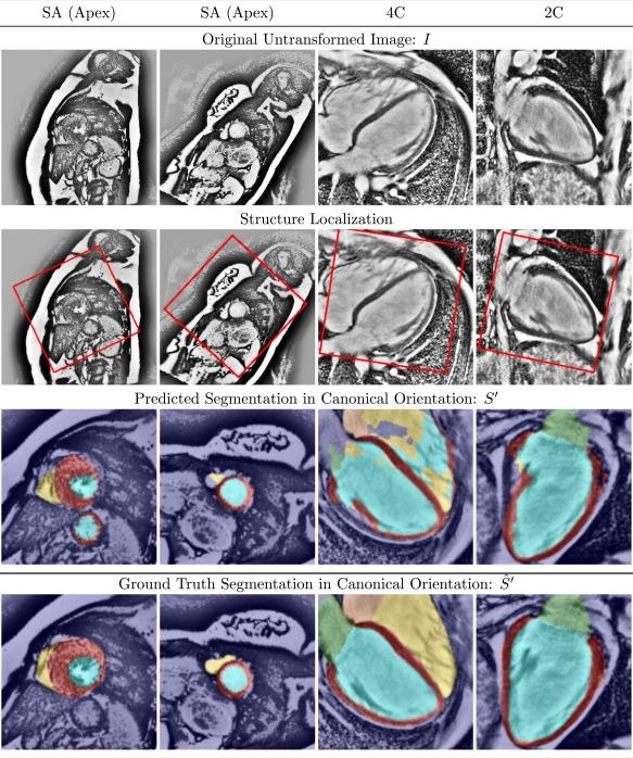 Ω-Net (Omega-Net): Fully automatic, multi-view cardiac MR