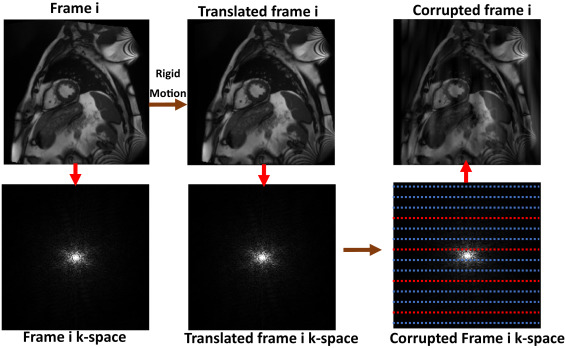 Automatic CNN-based detection of cardiac MR motion artefacts
