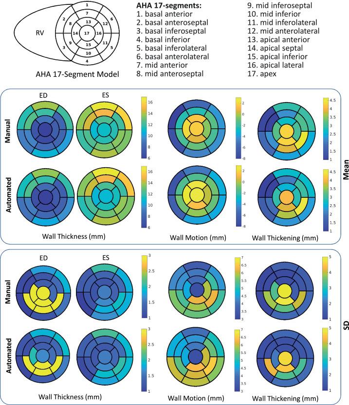 Quantitative CMR Population Imaging On 20 000 Subjects Of