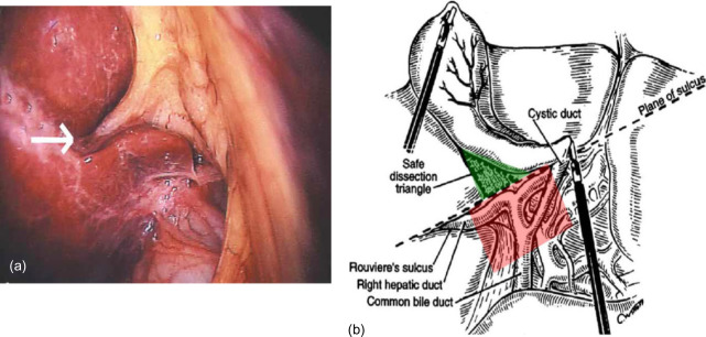 Using A Standardized Method For Laparoscopic Cholecystectomy To