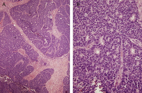neuroendocrine cancer head and neck