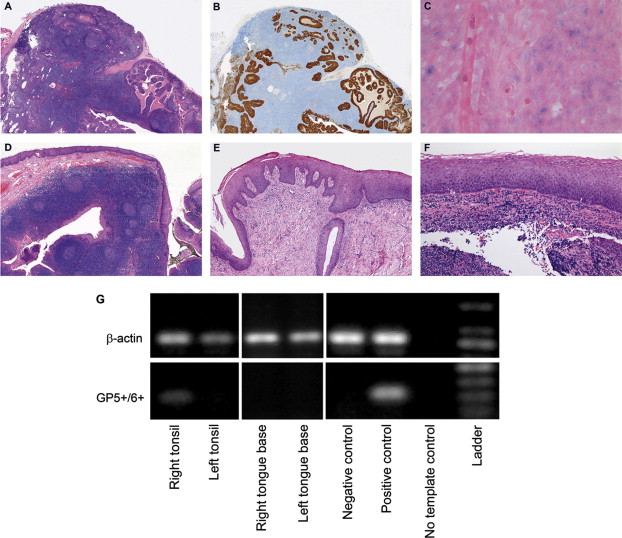 Patients with HPV-related tonsil squamous cell carcinoma