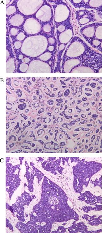 adenoid cystic carcinoma pathology