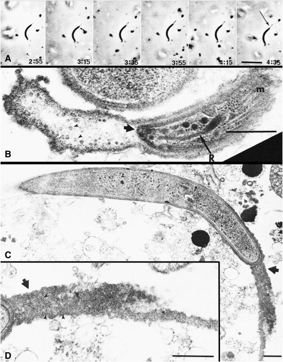 Imaging Mosquito Transmission Of Plasmodium Sporozoites Into The