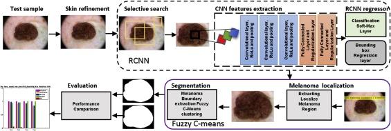 Melanoma lesion detection and segmentation using deep region