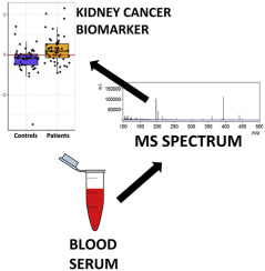 Gold Nanostructures Assisted Laser Desorption Ionization Mass Spectrometry For Kidney Cancer Blood Serum Biomarker Screening Sciencedirect