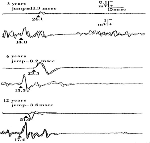 Non-invasive electrical and magnetic stimulation of the