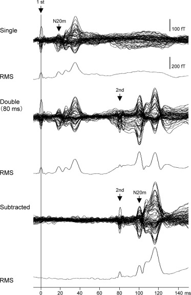 Recovery function of somatosensory evoked brain response in patients ...