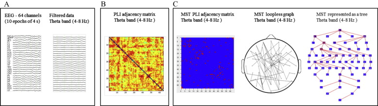Graph analysis of EEG resting state functional networks in