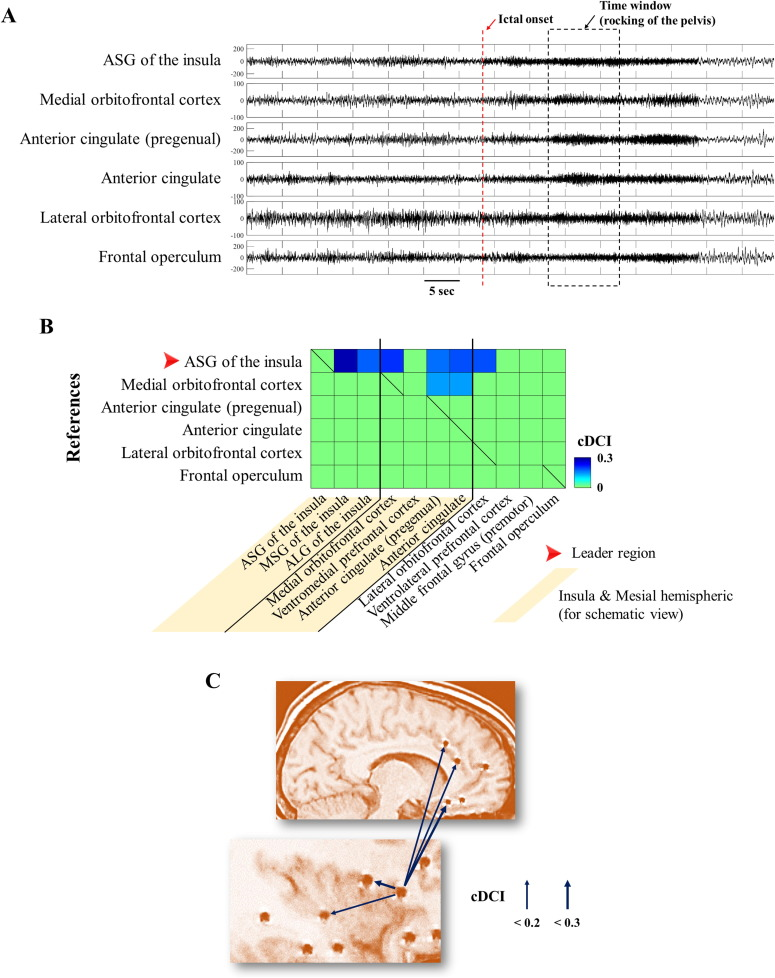 How can we explain the frontal presentation of insular lobe epilepsy ...