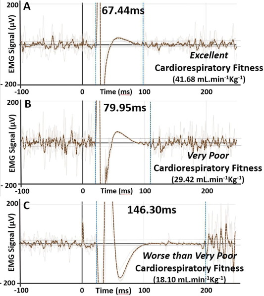 Prolonged cortical silent period is related to poor fitness