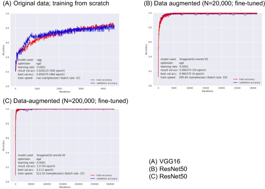 Deep learning for waveform identification of resting needle