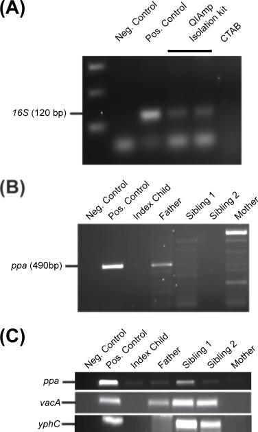 Stupendous The Use Of Stool Specimens Reveals Helicobacter Pylori Creativecarmelina Interior Chair Design Creativecarmelinacom