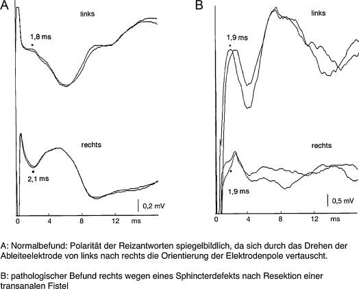 Neurophysiologische Diagnostik des Beckenbodens Methodik und ...