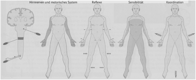 Berühmt Rückenmark Blutversorgung Anatomie Zeitgenössisch - Anatomie ...