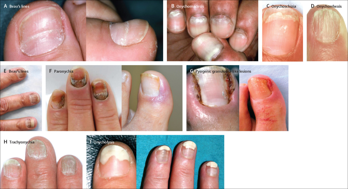 Nail toxicities induced by systemic anticancer treatments ...
