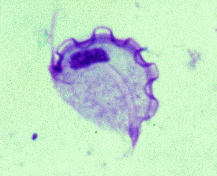 Trichomonas bacillus