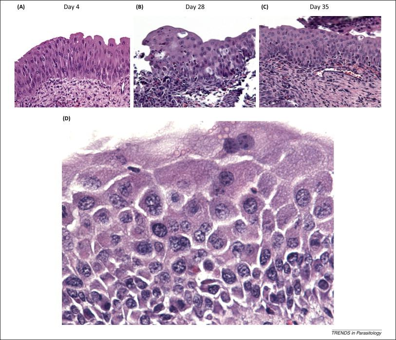 schistosomiasis cancer)