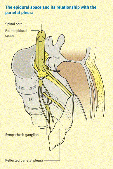 The anatomy of the epidural space - ScienceDirect