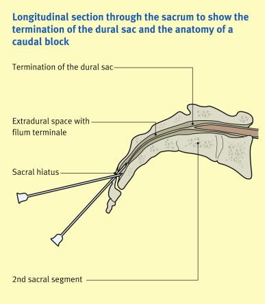 The sacrum and caudal block - ScienceDirect