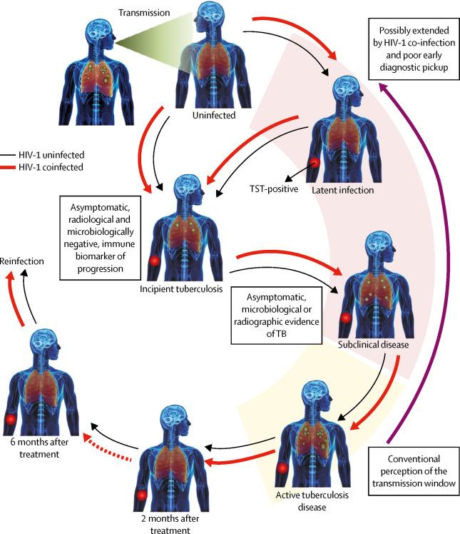 Advances in the understanding of Mycobacterium tuberculosis