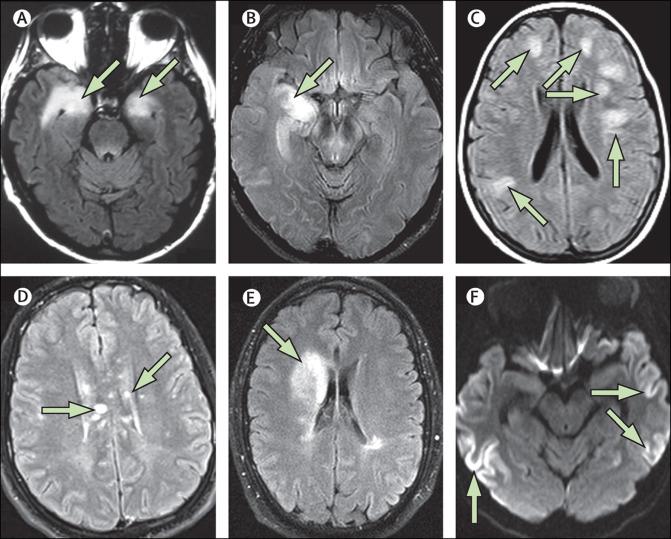 A Clinical Approach To Diagnosis Of Autoimmune Encephalitis