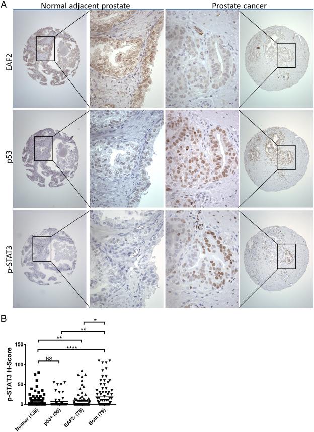 prueba de adenocarcinoma de próstata acinar g2