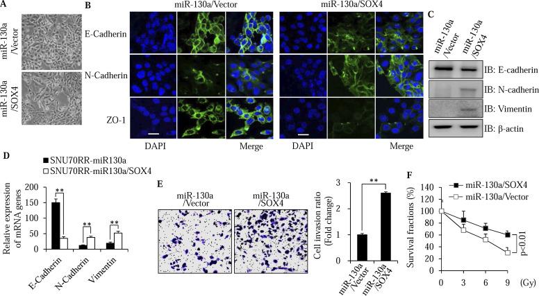 MicroRNA-130a modulates a radiosensitivity of rectal cancer