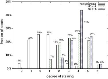 Image database ysis of Hodgkin lymphoma - ScienceDirect on