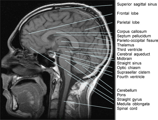 Mri Of The Cranium Normal Anatomy And Common Pathologies