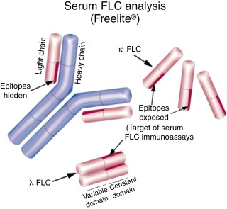 Serum Free Light Chain Assays Not Total Are The