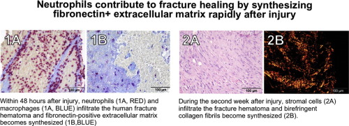 Neutrophils contribute to fracture healing by synthesizing