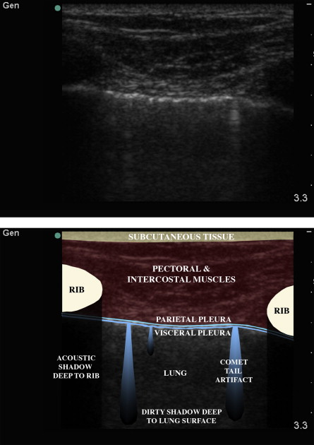 Ultrasound in trauma - ScienceDirect
