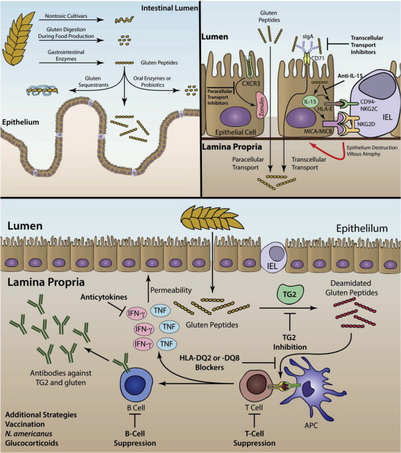 Therapeutic approaches for celiac disease - ScienceDirect