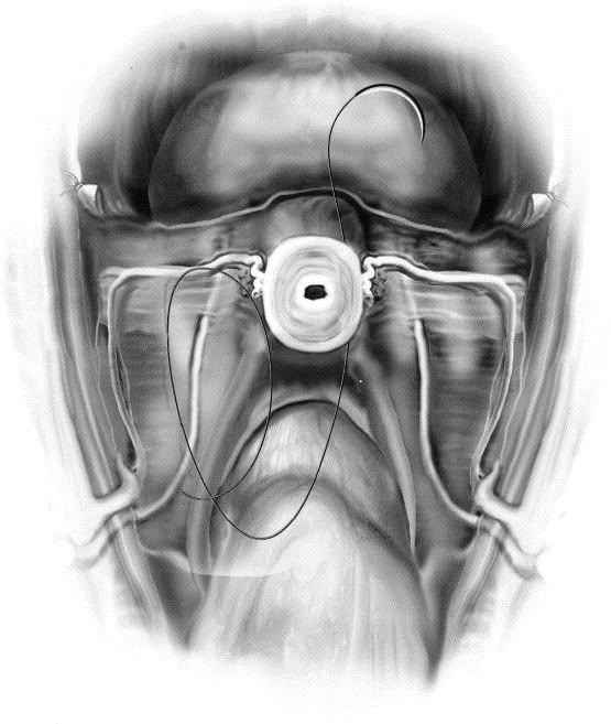 Attractive Atlas Of Pelvic Anatomy And Gynecologic Surgery Image ...