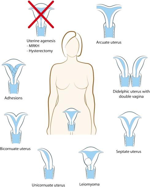 Experimental uterus transplantation - ScienceDirect