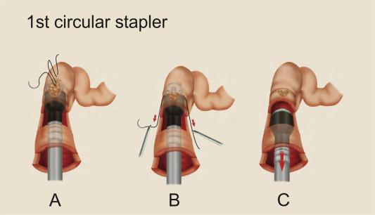 Bowel complications in endometriosis surgery - ScienceDirect