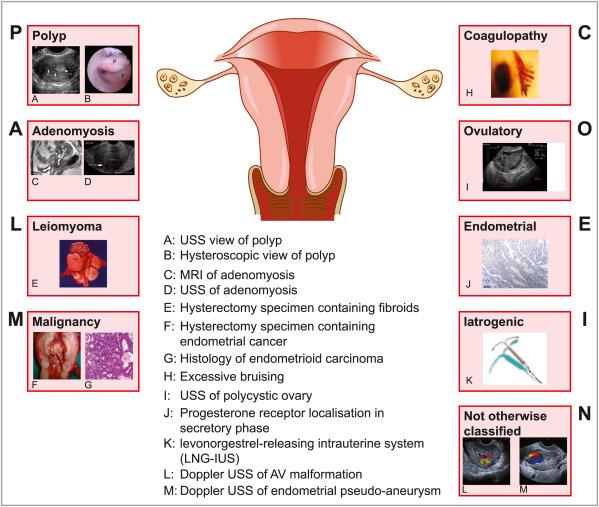 Abnormal Uterine Bleeding Sciencedirect