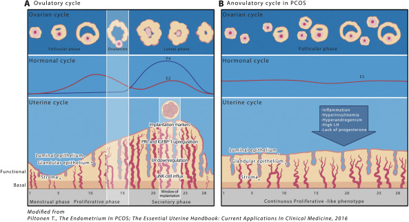 endometrial cancer and pcos