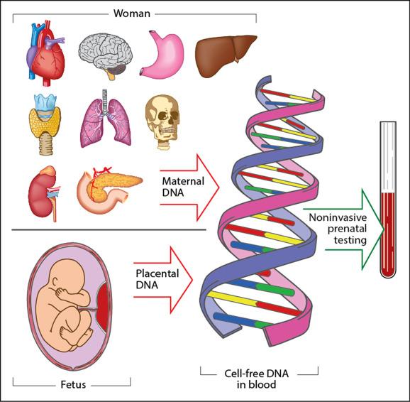 Noninvasive Prenatal Testing For Fetal Aneuploidy And Single Gene