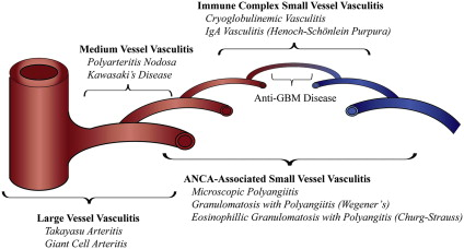 Vasculitis in the intensive care unit - ScienceDirect