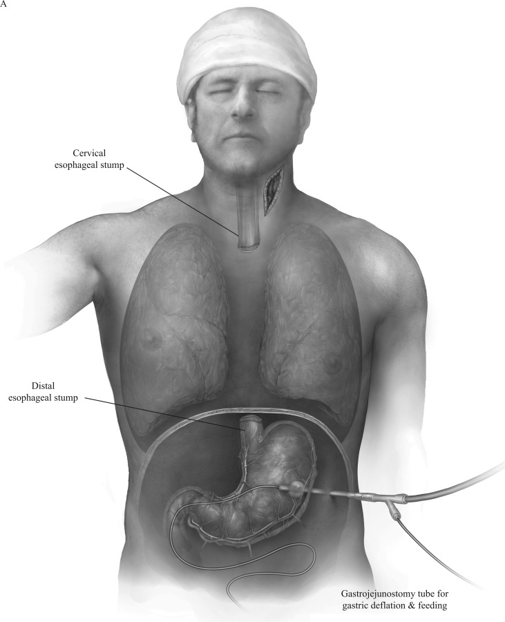 Surgical Management of Esophageal Perforation - ScienceDirect
