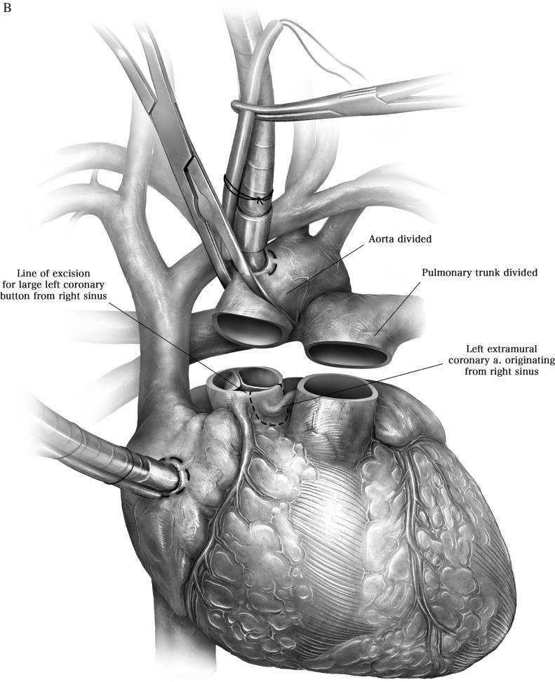 Surgical Treatment Of Anomalous Aortic Origin Of Coronary