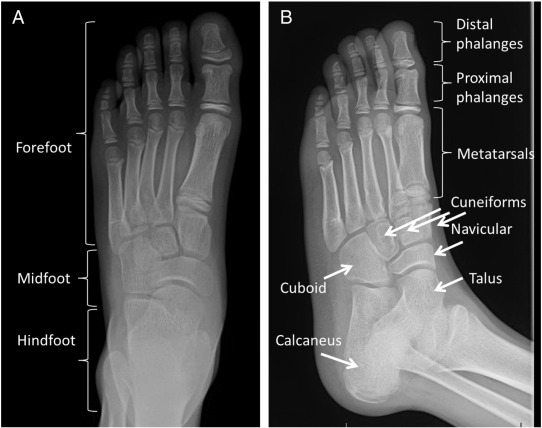 Pediatric Ankle And Foot Injuries Sciencedirect