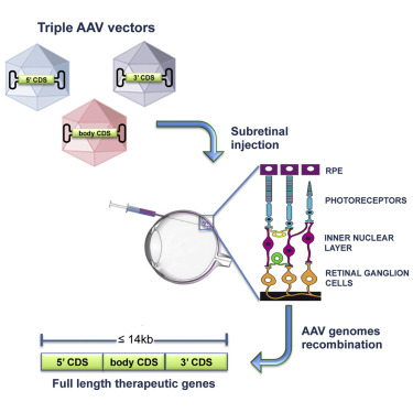 Triple vectors expand aav transfer capacity in the retina graphical abstract ccuart Choice Image