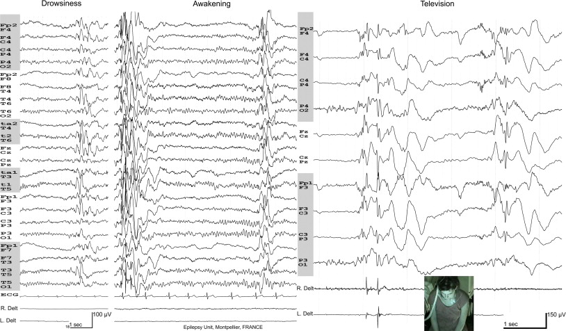 Neurophysiology of juvenile myoclonic epilepsy - ScienceDirect