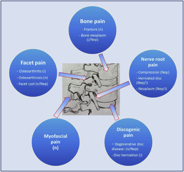 Toward a Mechanism-Based Approach to Pain Diagnosis