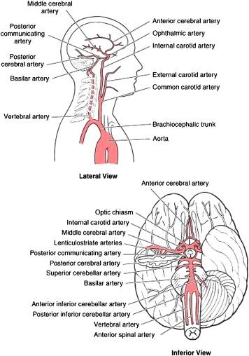 Enlargement of internal carotid artery aneurysm presenting with ...