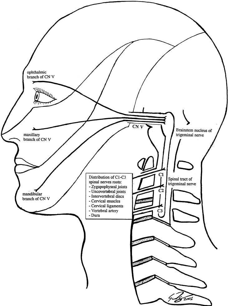 Cervicogenic Headaches A Critical Review