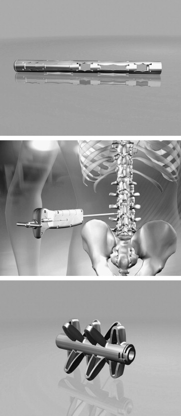 Treatment of postdiscectomy low back pain by percutaneous